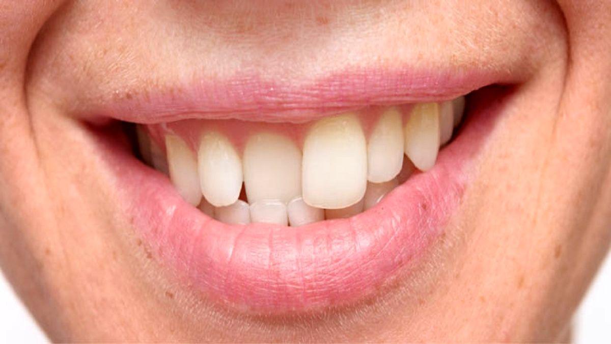 هشدار: عوارض خطرناک فشردگی دندان